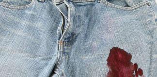 λεκές από αίμα στα ρούχα